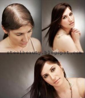 علاج الصلع وكيفية نمو الشعر بعد الصلع